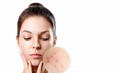 Consejos para reducir el acné
